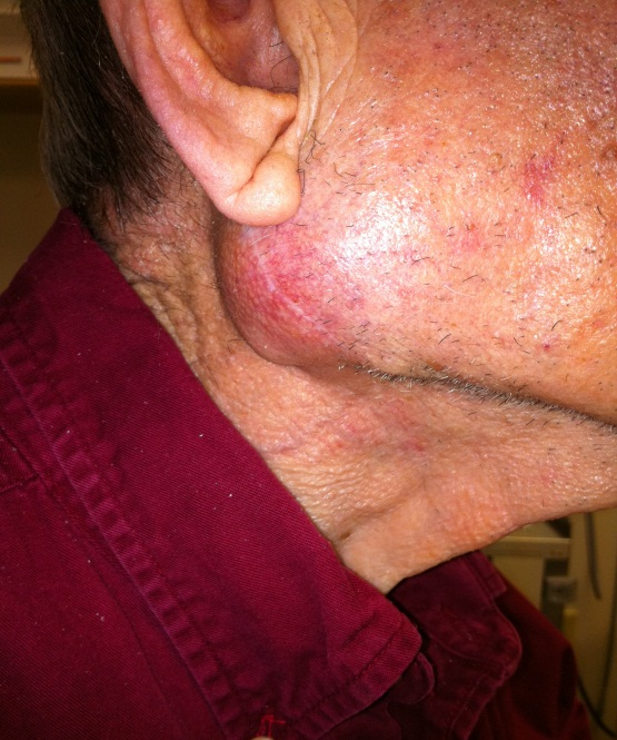 Throat cancer spread to lymph gland in neck